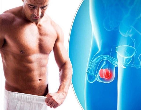 Ung thư tinh hoàn do nhiều nguyên nhân khác nhau gây ra